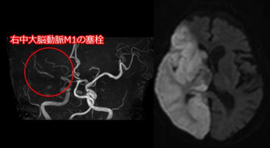 心原性塞栓症のMRI