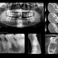 Quiste óseo aneurismático mandibular !