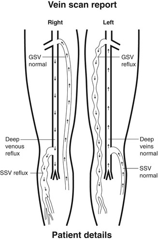 Anatomy of the lower-limb venous system and assessment of