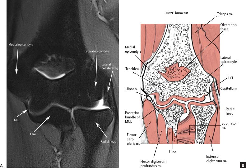 Normal MRI Anatomy of the Musculoskeletal System ...