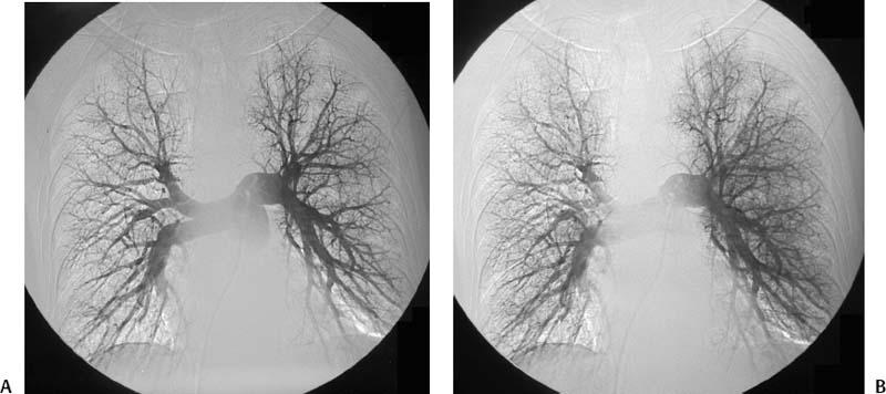 58 Pulmonary Embolus And Thrombolysis Radiology Key