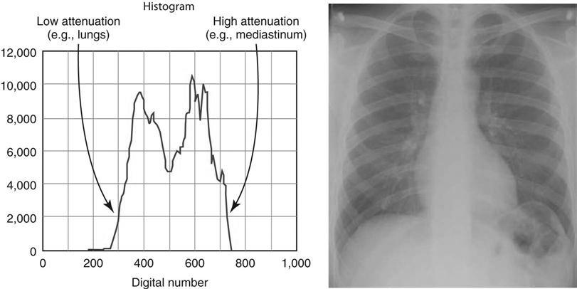X Radiography Digital Ray Process