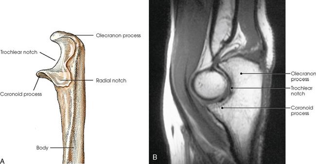 UPPER LIMB   Radiology Key