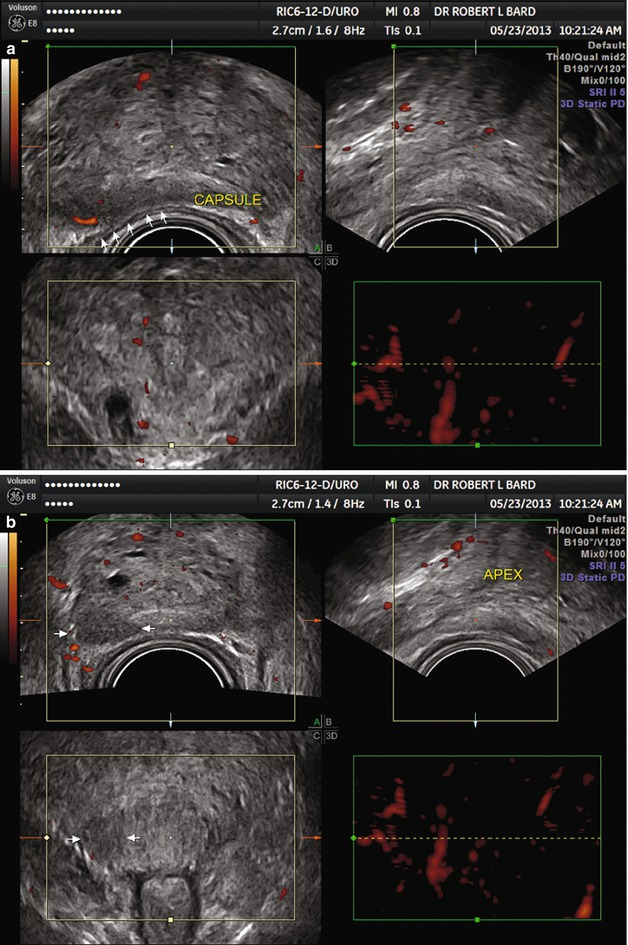 Diagnostic Ultrasound Imaging Of The Prostate