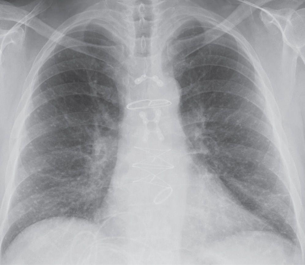 Solitary And Multiple Pulmonary Nodules Radiology Key