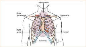 Critical Care Echocardiography   Radiology Key
