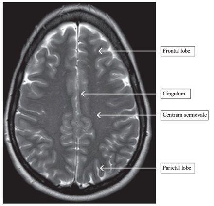 185 | Radiology Key