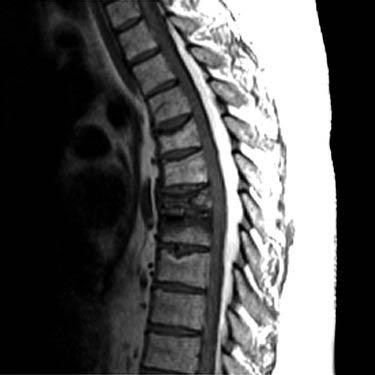Epidural Lipomatosis Radiology Key