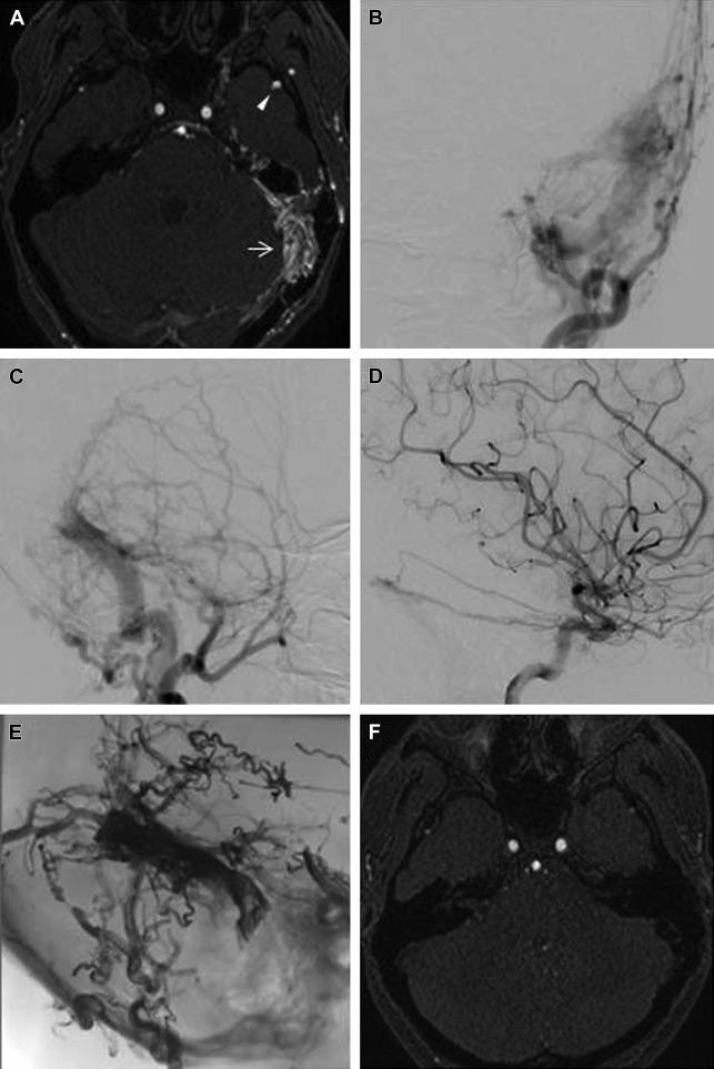 Dural Arteriovenous Fistulae   Radiology Key