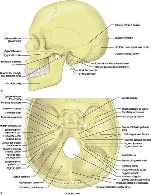 Temporal Bone Posterior Skull Base Posterior Fossa And Cranial