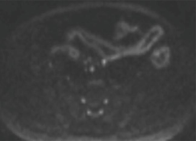 HsuWC1e-ch003-image002b