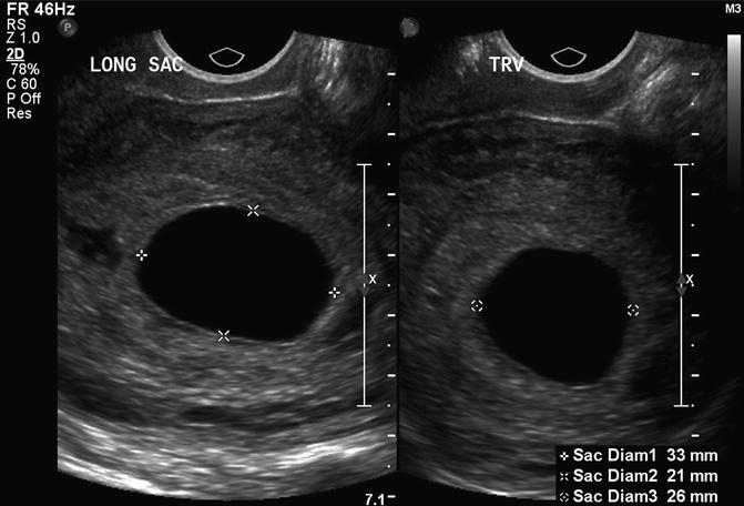 First-Trimester Ultrasound: Early Pregnancy Failure