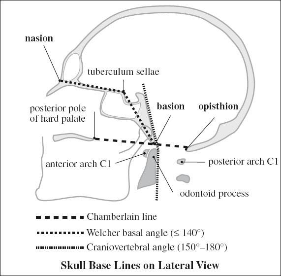 of Skull and Spine | Radiology Key