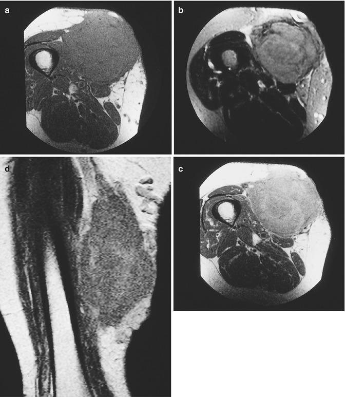 Soft Tissue Lymphoma   Radiology Key