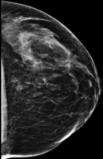 Focal Asymmetry | Radiology Key