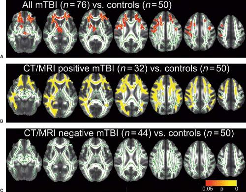 Head Trauma | Radiology Key