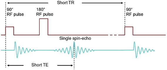 Diagram shows pulse sequence of spin-echo where three sets of pulses are displayed with dimensions of short TR and short TE.