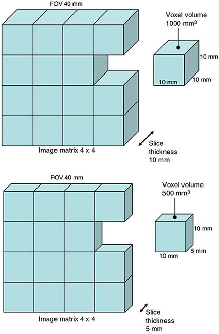 Diagram shows 3D representation of image matrix 4 x 4, slice thickness is 10 mm, and FOV as 40 mm and each slice having dimension as 10 mm on all sides and in another for 5 mm width.