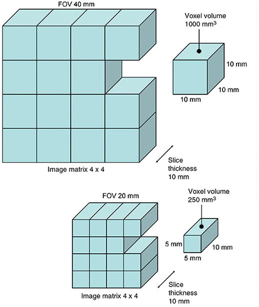 Diagram shows 3D representation of image matrix 4 x 4, slice thickness is 10 mm, and FOV as 40 mm and each slice having dimension as 10 mm on all sides and in another for 5 mm length and breadth.