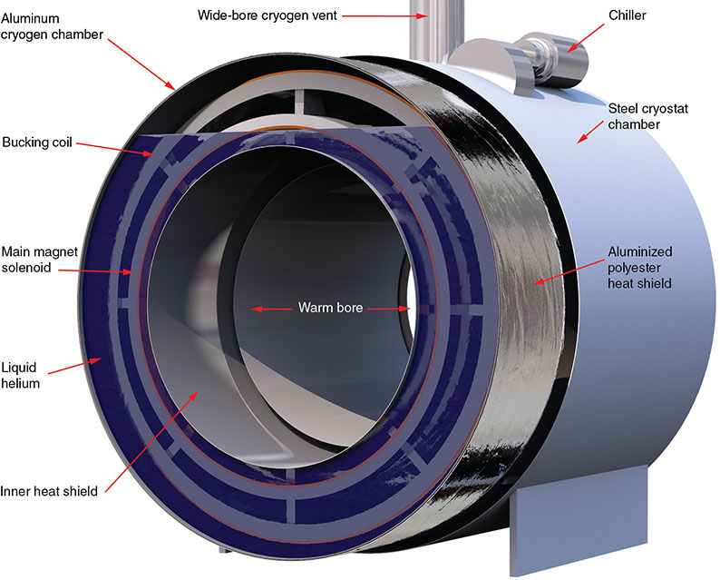Diagram shows construction of MRI cryostat with inner heat shield, main magnet solenoid, liquid helium, bucking coil, aluminum cryogen chamber, wide-bore cryogen vent, et cetera.