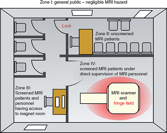 diagram shows mri safety zones having scanner and fringe field with lock,  with unscreened mri