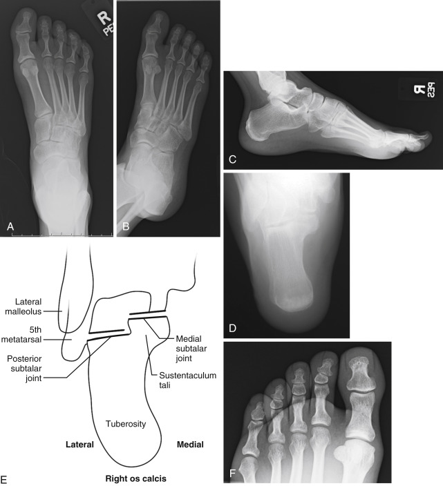 The Foot Radiology Key