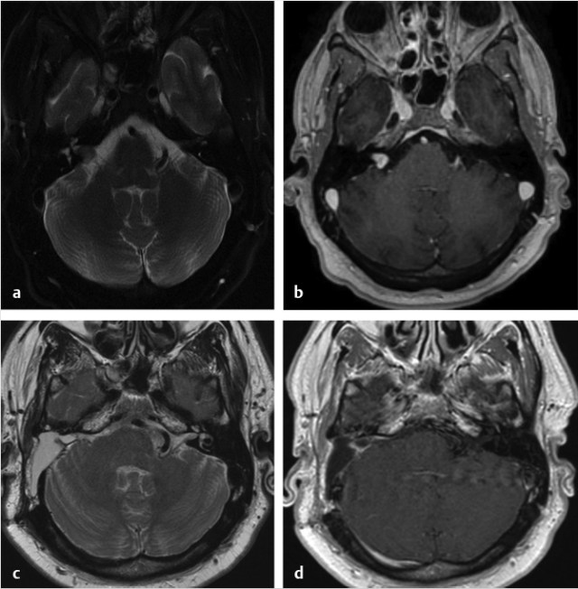 Petroclival And Lateral Skull Base Radiology Key Take away messages for radiology resident • skull base chondrosarcoma typically forms an. petroclival and lateral skull base
