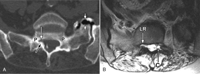 what is bilateral lateral recess stenosis