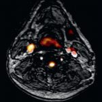 Atherosclerotic Plaque Imaging: Aorta and Carotid