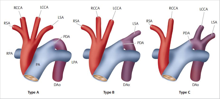 aorta hipertónia magas vérnyomás zihálás a mellkasban