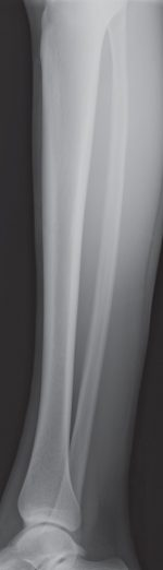 Male Tibia and Fibula