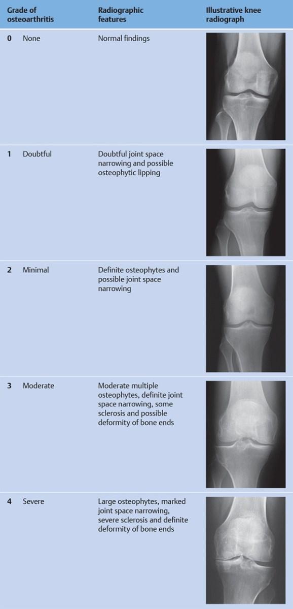 Térdízület gonarthrosis, A térdízület kopása: tünetek, kivizsgálás és kezelés