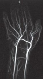 5 Arteriography