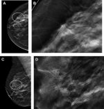 Management of High-Risk Breast Lesions