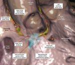 13 Atrioventricular Septal Region