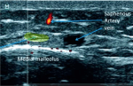 Abnormalities of the Saphenous Nerve at the Ankle