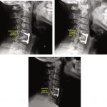 Subaxial Cervical Spine Plain Radiographs
