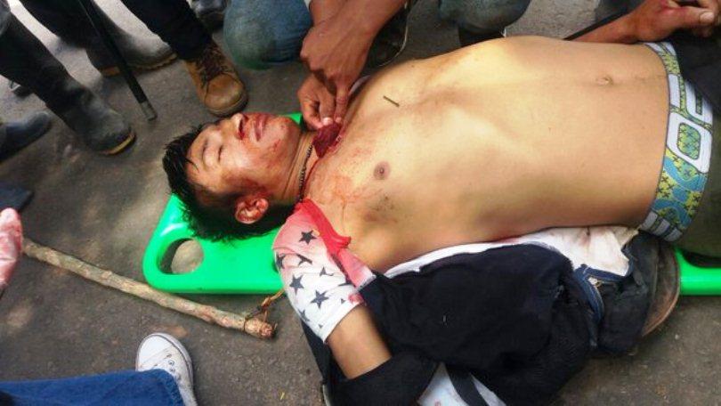 Gersain Ceron asesinado en Cauca Esmad