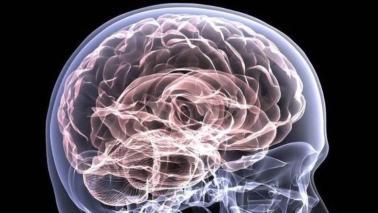 Radiografía de un cerebro.
