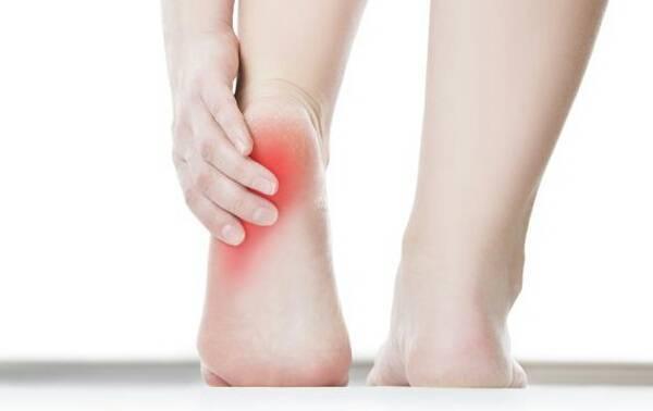 Sakit tumit kaki kerap berlaku pada mereka yang berumur 40 tahun dan ke atas dan punya berat badan berlebihan.