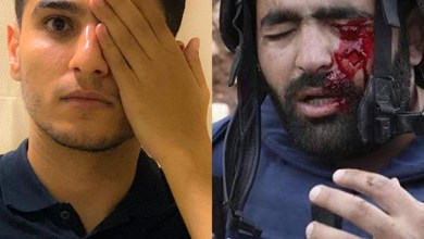 صورة محمد عساف الاحتلال يستهدف العين للتغطية على الجرائم التي يرتكبها بحق الشعب الفلسطيني