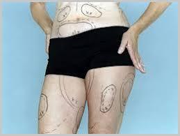 liposuctie-procedura-cicatrici- onlinetraining