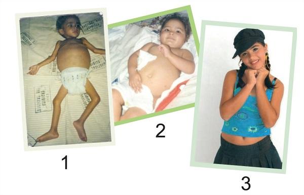 doenca-celiaca-intelerancia-ao-glutem-doenca-quadro-1