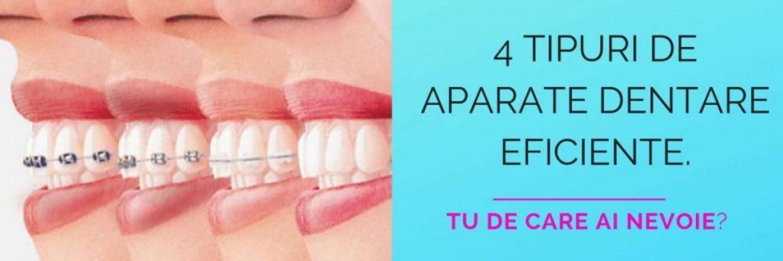 4 tipuri de aparate dentare EFICIENTE. Tu de care ai nevoie?
