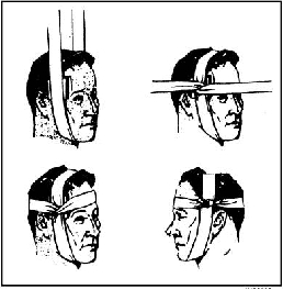 four bandaged heads