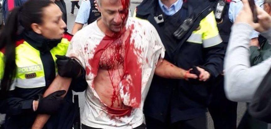 Krvavi referendum: U sukobima s policijom ozlijeđeno 465 ljudi