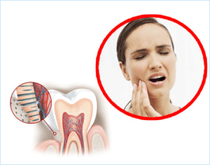 Root Canal Treatment(RCT)