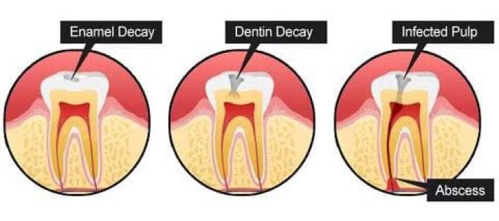 black spot on tooth,