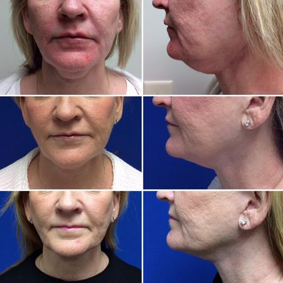 How Long Does Kybella Last
