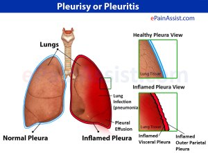 Chest pain due to inflammation of the covering of lungs[pleura]